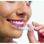 invisalign