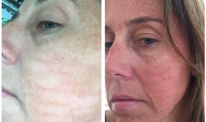 Face Update: 5 Months after my Laser Treatment Disaster